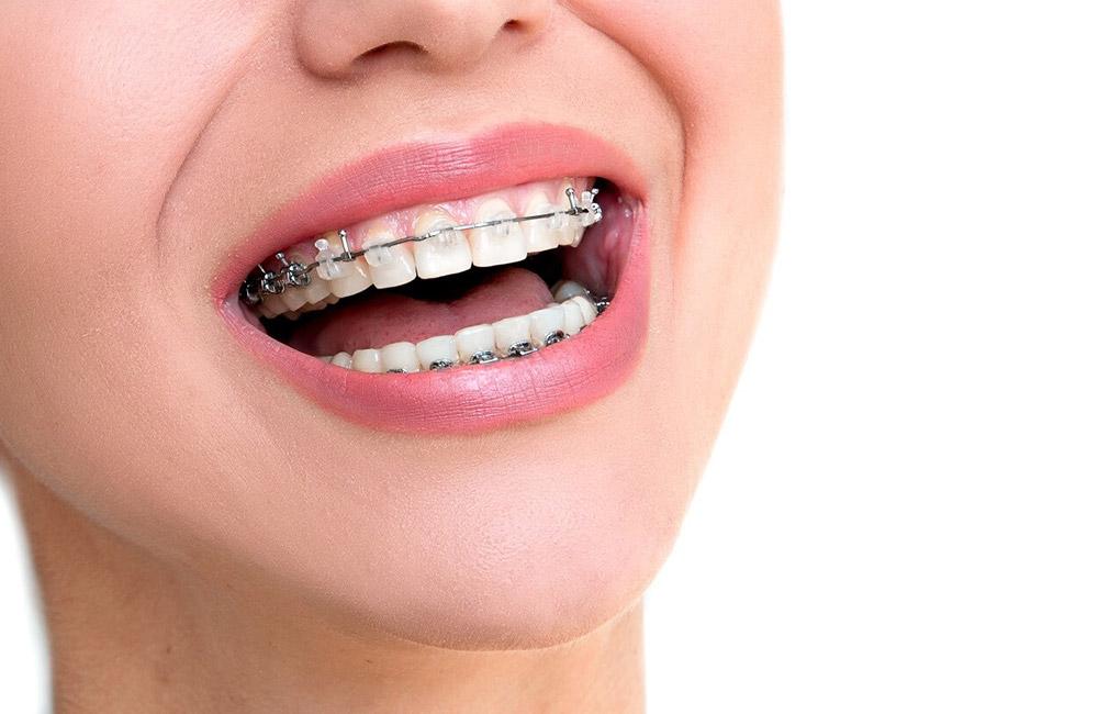braces near you