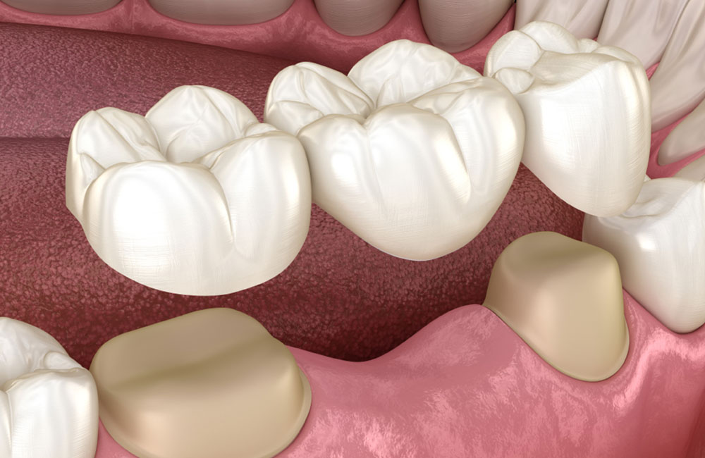 dental bridges in saskatoon
